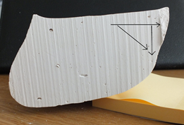 Fig 4. Horizontal line Talo/nav drift and vertical line Talo/nav drop. Diagonal line is the resultant angular movement which must be opposed by the orthotic device.